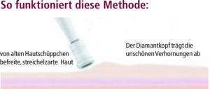 Abtragung mittels Diamant Microdermabrasion