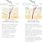 Galvanic-Spa-Behandlung