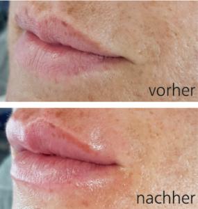 Hyaluron Booster Pen-Vorher-Nachher-6