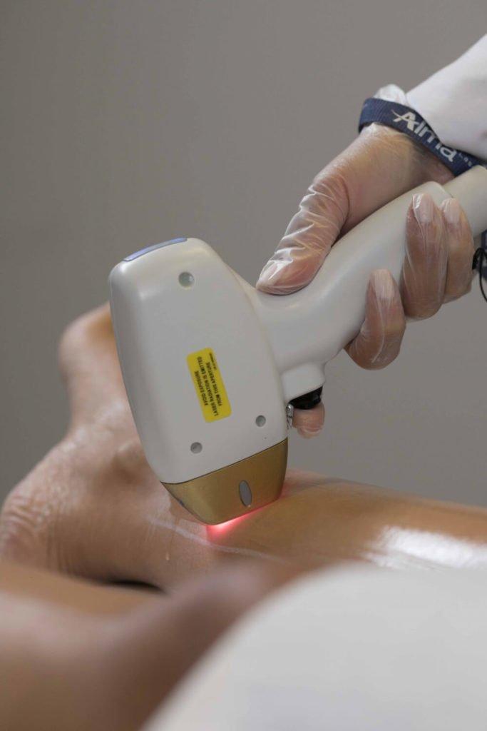 Laser-Behandlung-25