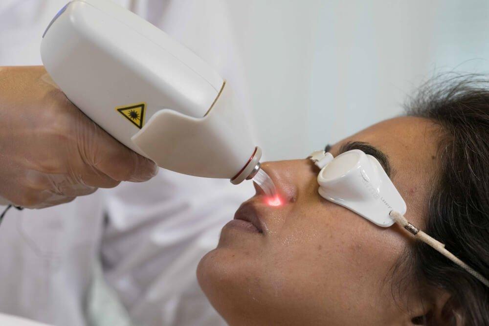 Laser-Behandlung-29