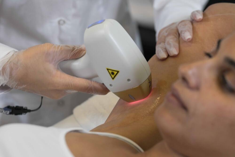 Laser-Behandlung-31
