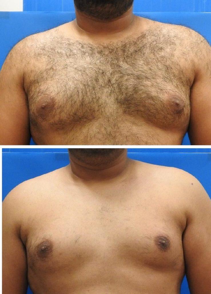 Laser-Behandlung-Vorher-Nachher-3
